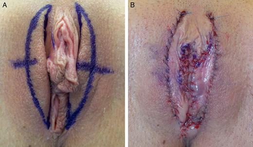 Послеоперационные швы после лабиопластики