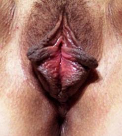 Фотография 30-летней женщины с выраженными двусторонними боковыми складками клиторального капюшона