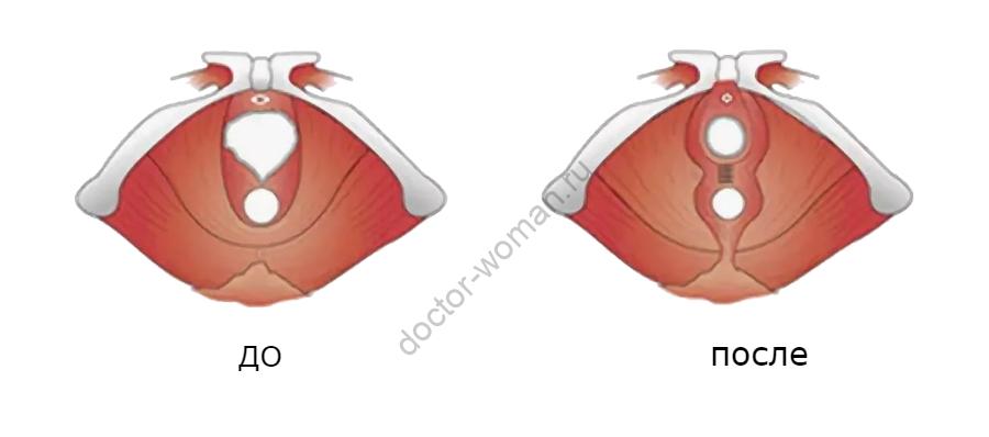 Перинеопластика до и после