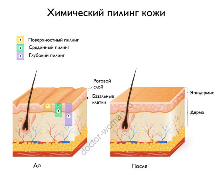 Химический пилинг кожи