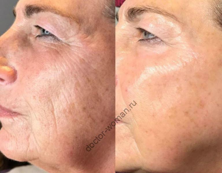 PRP-терапия. Фото до и после процедуры