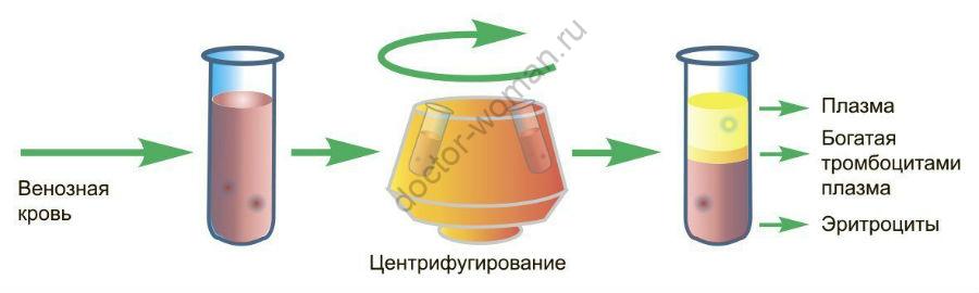 Схема prp-терапии