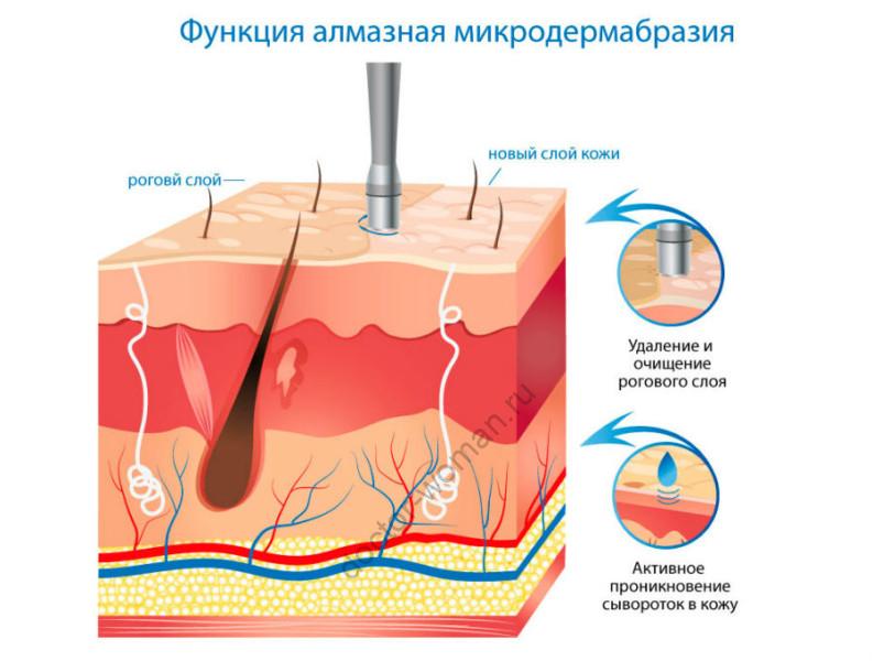 Алмазная микродермабразия