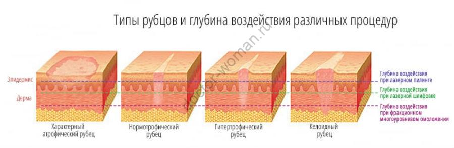 Типы рубцов и глубина воздействия различных процедур
