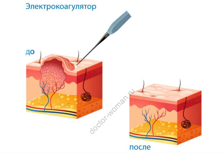 Удаление бородавок электрокоагулятором