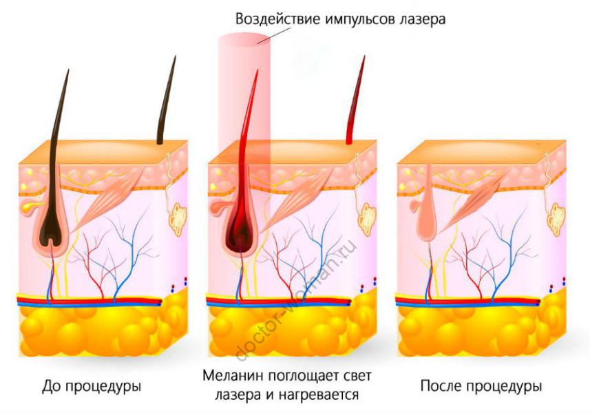 Воздействие импульсов лазера