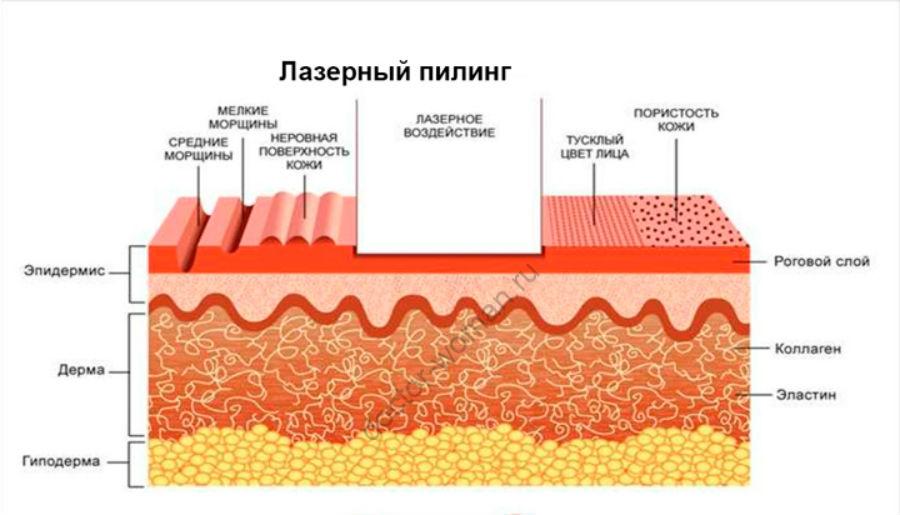 Воздействие лазерного пилинга на кожу