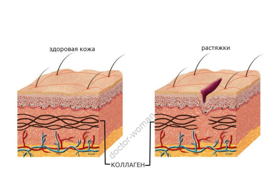 Как растяжки меняют кожу