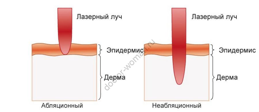 Чем фракционный лазер отличается от неабляционных лазеров