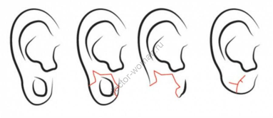 Коррекция мочки уха после тоннелей