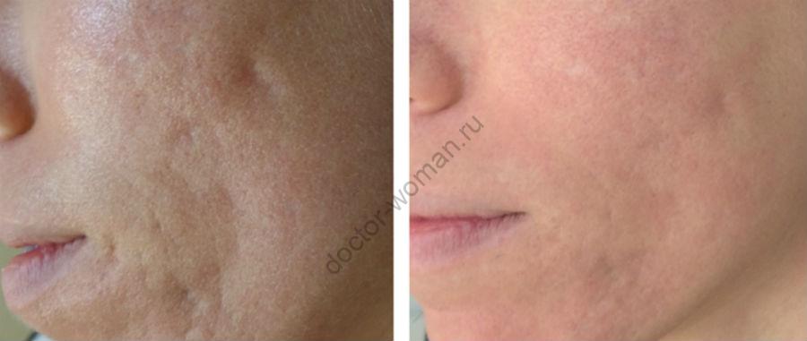 Лечение шрамов от угревой сыпи фракционным лазером до и после