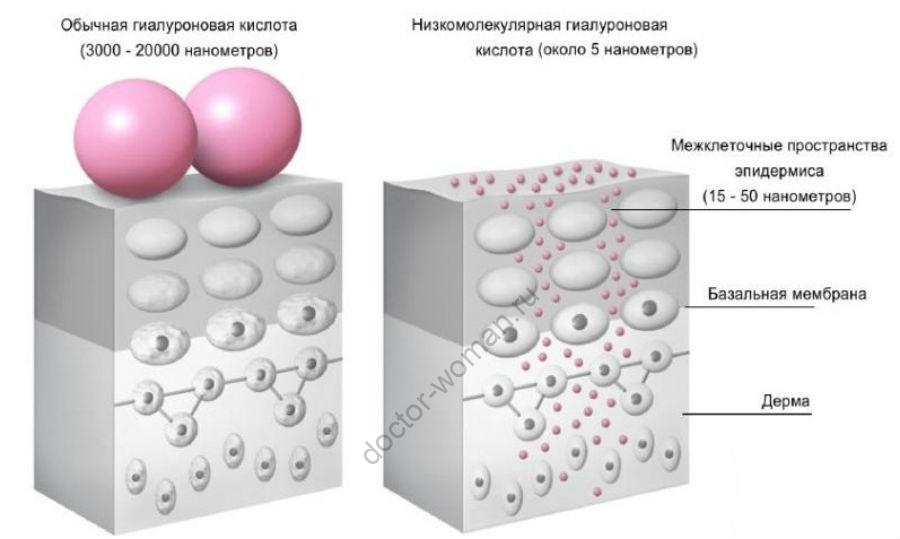 Типы гиалуроновой кислоты