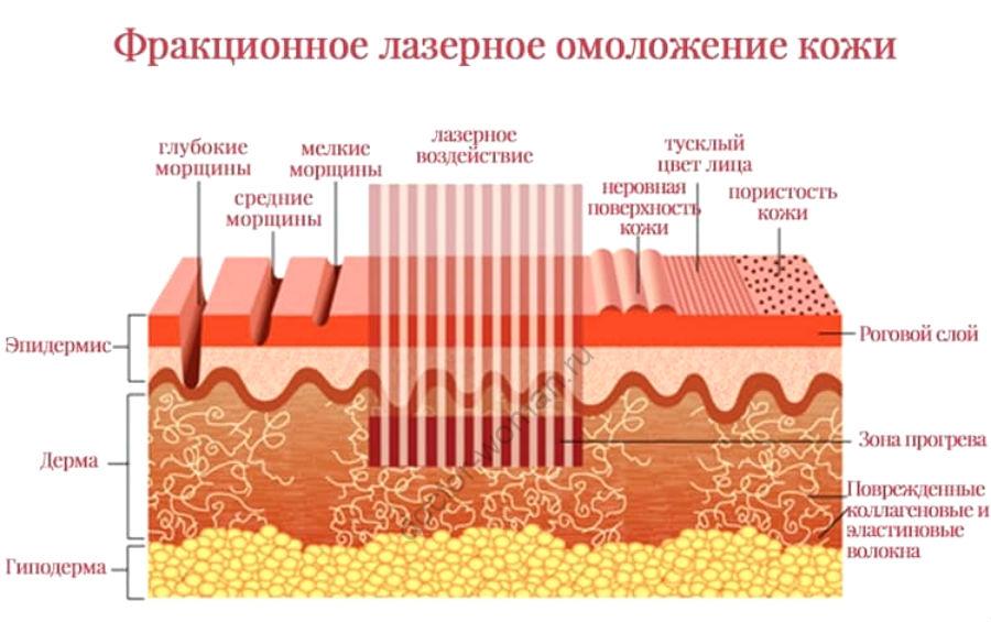 Воздействие фракционного СО2-лазера на кожу