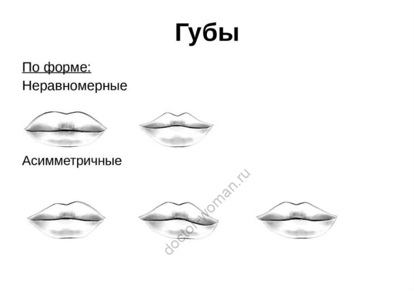 Рисунок 2. Формы губ