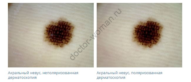 Эффект поляризации в дерматоскопии акрального меланоцитарного невуса