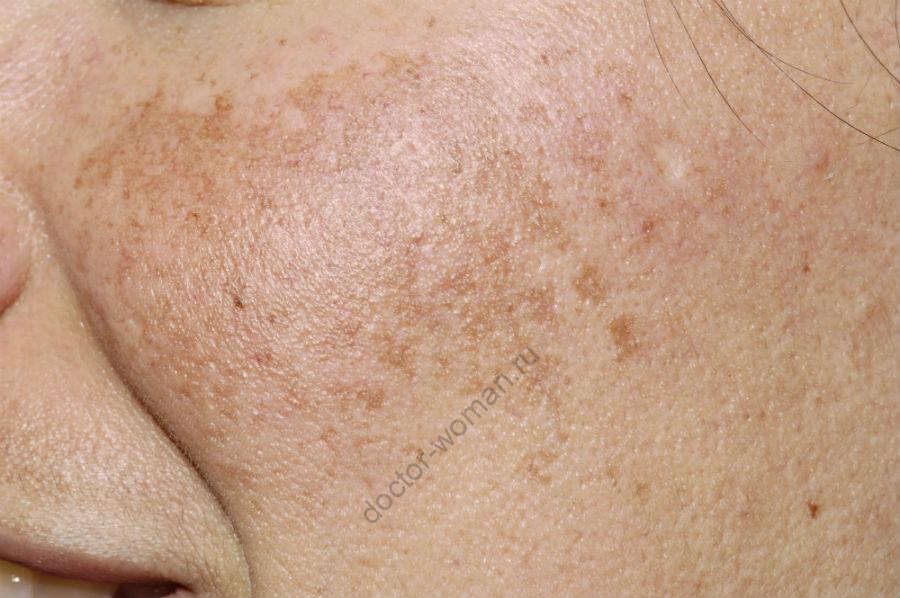 Пигментированная кожа