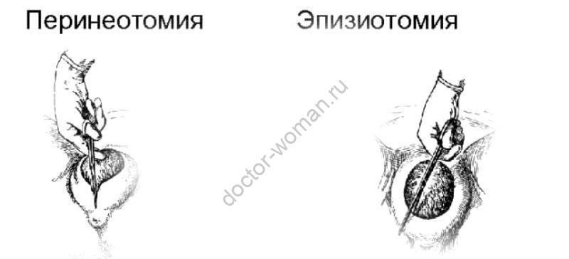 Эпизиотомия и перинеотомия