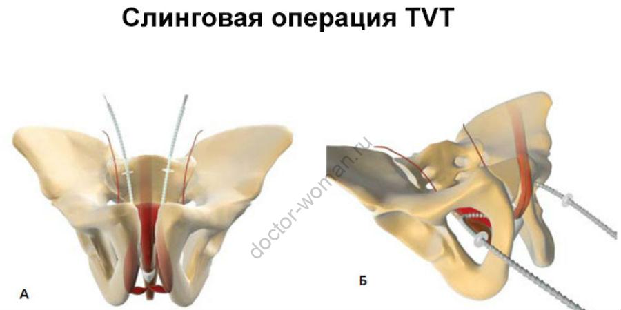 Слинговая операция TVT