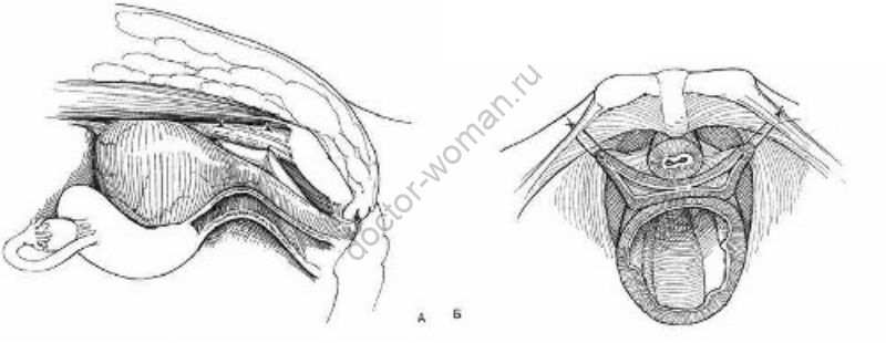 Кольпосуспензия Берча – классический хирургический метод лечения стрессового недержания