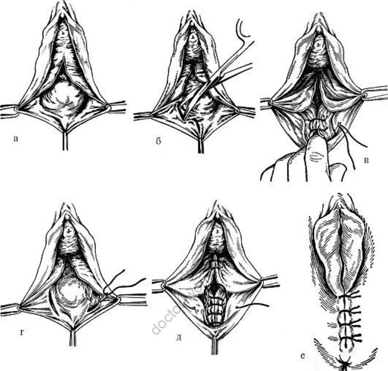 Этапы кольпоперинеолеваторопластики: а - отсепаровка слизистой оболочки стенки влагалища; б - отсепаровка и выделение мышцы, поднимающей задний проход; в-д - наложение швов; е - ушивание промежности